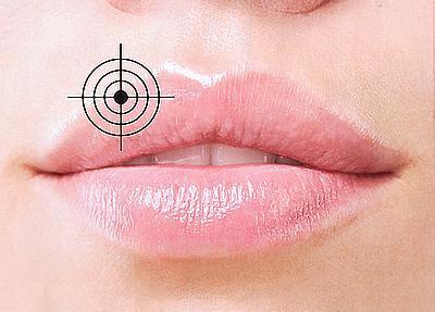 Герпес: правда и мифы о простуде на губах