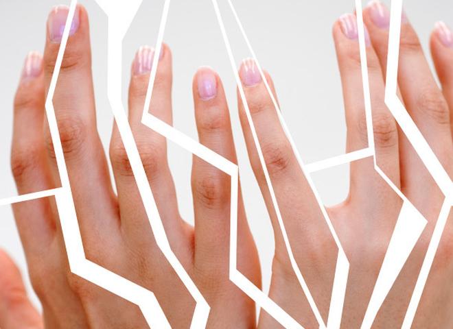 Что делать, если трескается кожа на руках: SOS-методы