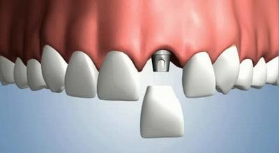 Особенности протезирование зубов на имплантах