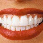 По какой цене на вставить зубы, с использованием современных технологий