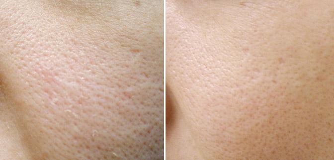 Как бороться с расширенными порами на лице?