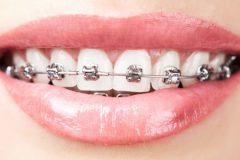 Основные этапы ортодонтического лечения брекет-системами