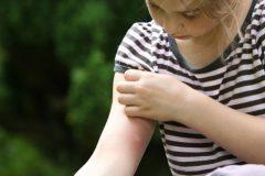 Три причины, из-за которых кусают комары