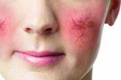 Розацея: устраняем покраснения кожи
