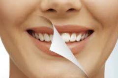 Грамотный уход за полостью рта и все об отбеливании