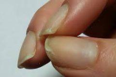 Почему слоятся ногти: причины и способы лечения