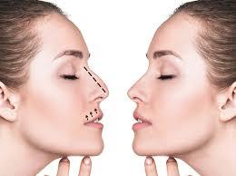 Все что вы хотели знать про ринопластику кончика носа