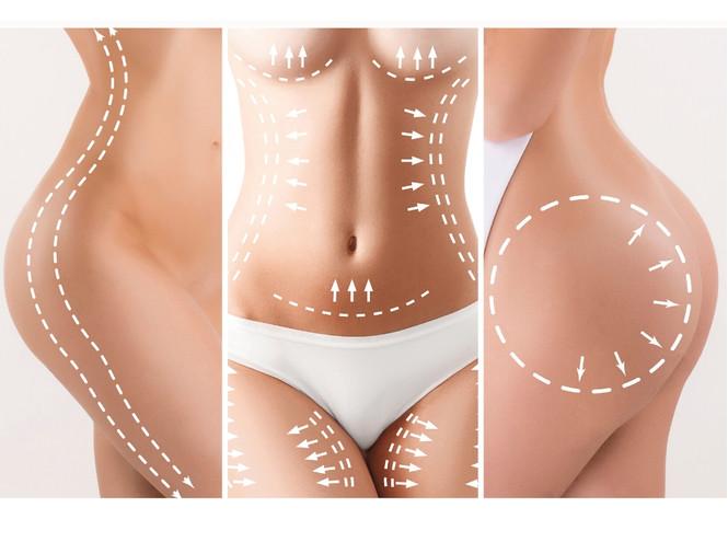 Что такое body-скульптурирование, и подходит ли оно вам