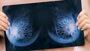 12 вопросов маммологу о здоровье груди