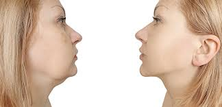 «Обвисшие щеки: как убрать брыли на лице?»