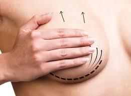 Форма плюс объем: что нужно знать о якорной подтяжке груди
