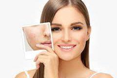 Как «обновить» кожу лица без косметических инъекций