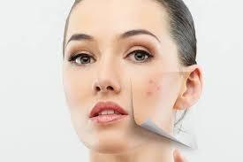 5 пищевых привычек, которые провоцируют акне и другие проблемы с кожей