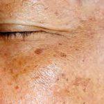 «О каких болезнях могут говорить пигментные пятна на лице?»